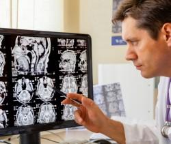 Fatores ambientais que desencadeiam a esclerose múltipla