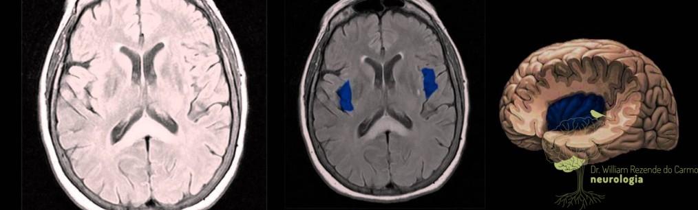 Exame de neuroimagem não é essencial para diagnóstico da enxaqueca