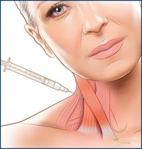Aplicação de toxina botulínica para distonia