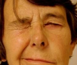 Toxina Botulínica para Espasmos Faciais