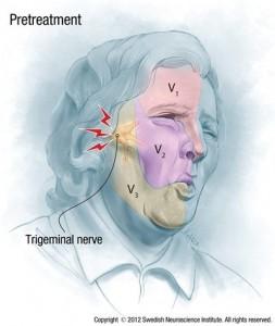 Toxina botulínica para neuralgia do trigêmeo