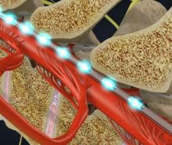 Estimulação Medular Melhora a Marcha na Doença de Parkinson