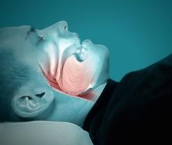 Quais os Fatores de Risco para Apneia do Sono?