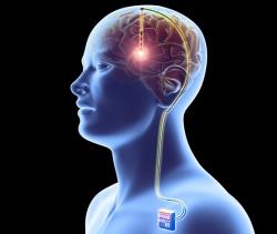 Cirurgia para Doença de Parkinson