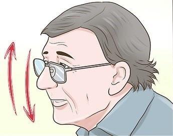 O que é Tremor essencial na cabeça?