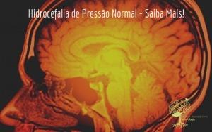 Hidrocefalia de Pressão Normal – Saiba Mais!