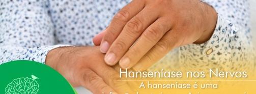 Saiba Mais sobre a Hanseníase nos Nervos