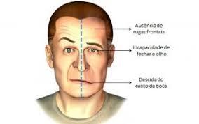 Sintomas Do Avc