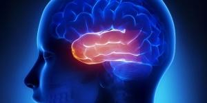 esclerose mesial temporal